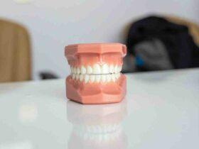 Comment  Ajuster un protège dents
